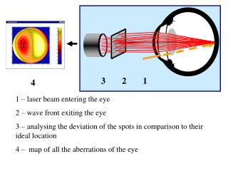 1 – laser beam entering the eye 2 – wave front exiting the eye