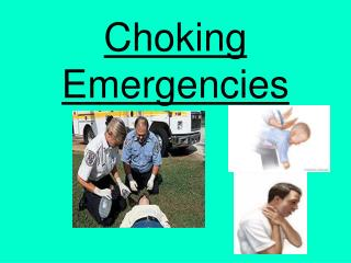 Choking Emergencies