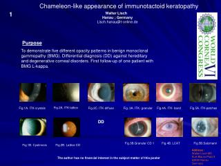 Chameleon-like appearance of immunotactoid keratopathy