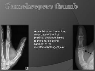 Gamekeepers thumb