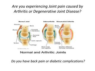 Are you experiencing Joint pain caused by Arthritis or Degenerative Joint Disease?