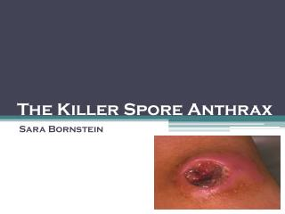 The Killer Spore Anthrax