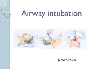 Airway intubation