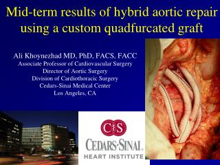 Mid-term results of hybrid  aortic  repair  using  a  custom quadfurcated  graft