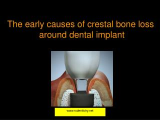 The early causes of  crestal  bone loss  around dental implant