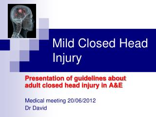 Mild Closed Head Injury