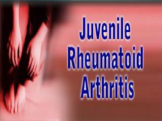 Normal knee anatomy Symptoms and pathology of juvenile rheumatoid arthritis Pain management