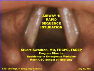 AIRWAY 1: RAPID SEQUENCE INTUBATION Stuart Swadron, MD, FRCPC, FACEP Program Director