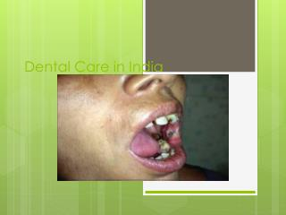 Dental Care in India