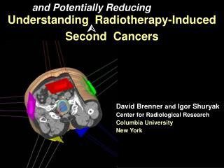 Understanding  Radiotherapy-Induced  Second  Cancers