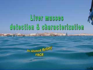 Liver masses detection & characterization