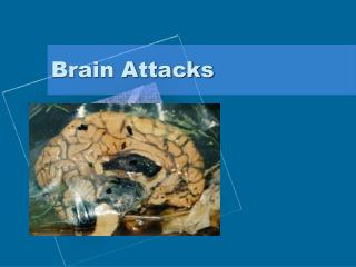 Brain Attacks