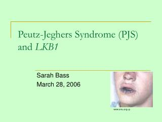 Peutz-Jeghers Syndrome (PJS) and  LKB1