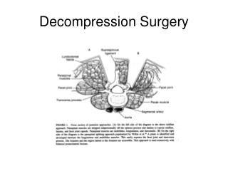 Decompression Surgery