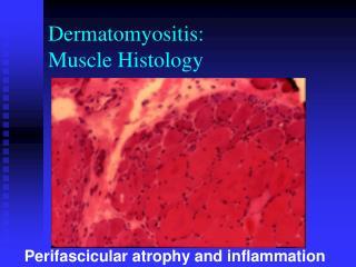 Dermatomyositis: Muscle Histology