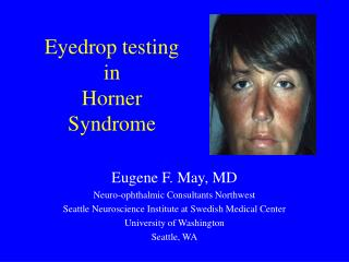 Eyedrop testing in Horner Syndrome