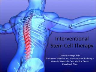 Interventional  Stem Cell Therapy