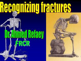 Recognizing fractures