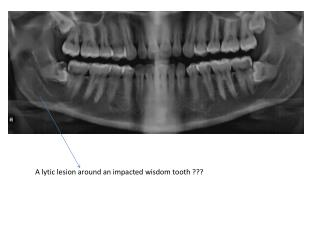 A  lytic  lesion around an impacted wisdom tooth ???