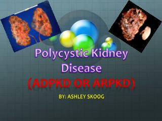 Polycystic Kidney Disease (ADPKD OR ARPKD)
