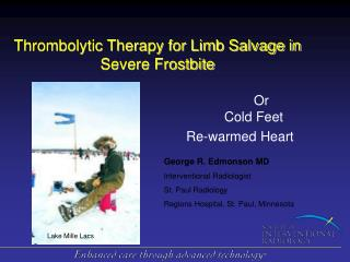 Thrombolytic Therapy for Limb Salvage in Severe Frostbite