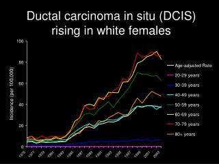 Ductal carcinoma in situ (DCIS) rising in white females