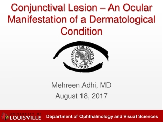 Conjunctival Lesion – An Ocular Manifestation of a Dermatological Condition