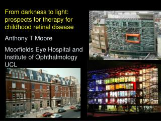 From darkness to light: prospects for therapy for  childhood retinal disease Anthony T Moore