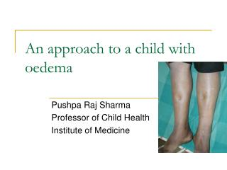 An approach to a child with oedema