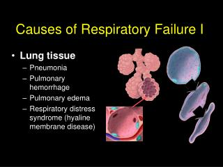Causes of Respiratory Failure I