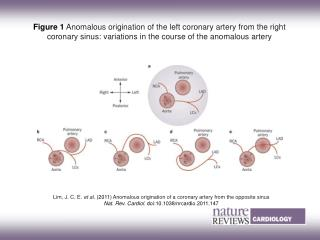 Lim, J. C. E.  et al.  (2011) Anomalous origination of a coronary artery from the opposite sinus