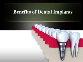 Dental Implants in Houston - A Permanent Solution for Missin