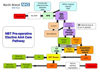 NBT Pre-operative Elective AAA Care Pathway