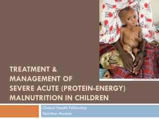 Treatment & Management of  severe acute (Protein-Energy) Malnutrition in Children
