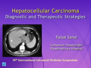 Hepatocellular Carcinoma Diagnostic and Therapeutic Strategies