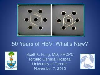 50 Years of HBV: What's New?