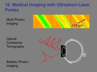 18. Medical Imaging with Ultrashort Laser Pulses