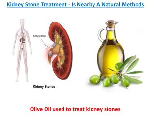 Kidney Stone Treatment - Is Nearby A Natural Methods