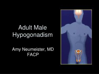 Adult Male  Hypogonadism