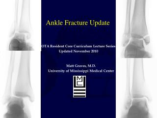 Ankle Fracture Update
