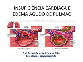 INSUFICIÊNCIA CARDÍACA E EDEMA AGUDO DE PULMÃO