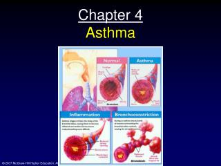 Chapter 4 Asthma