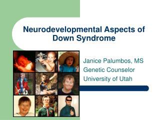 Neurodevelopmental Aspects of Down Syndrome