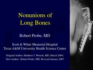 Nonunions of Long Bones