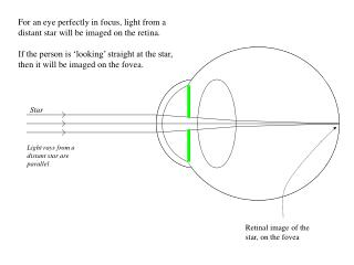 For an eye perfectly in focus, light from a distant star will be imaged on the retina.