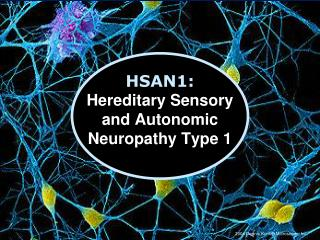 HSAN1:  Hereditary Sensory  and Autonomic Neuropathy Type 1