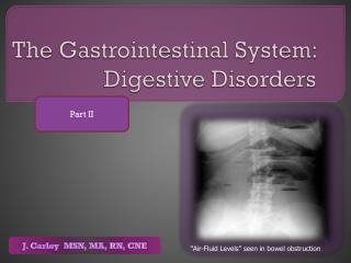 The Gastrointestinal System:  Digestive Disorders