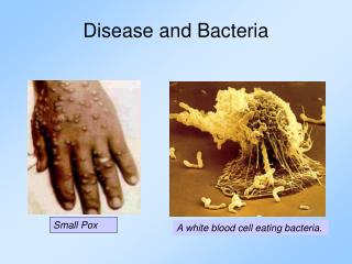 Disease  and Bacteria