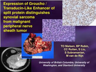 Expression of Groucho / Transducin-Like Enhancer of split protein distinguishes synovial sarcoma