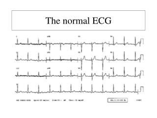 The normal ECG